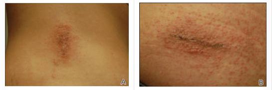Allergic Contact Dermatitis to 2-Octyl-Cyanoacrylate super glue